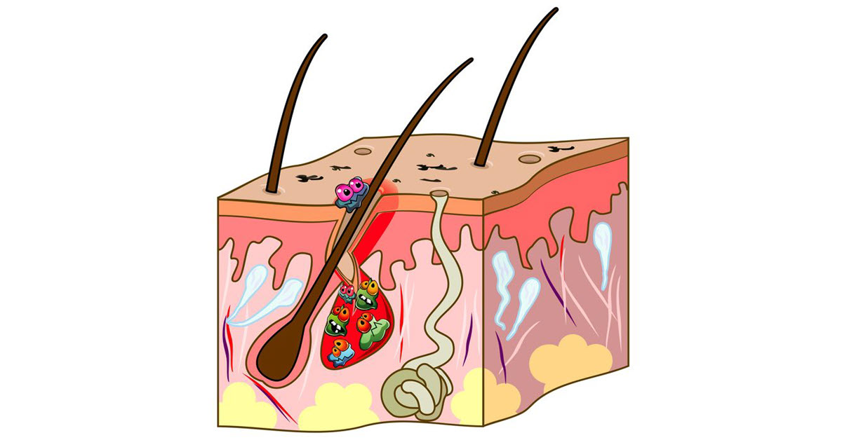 Skin cross section showing the causes of acne.